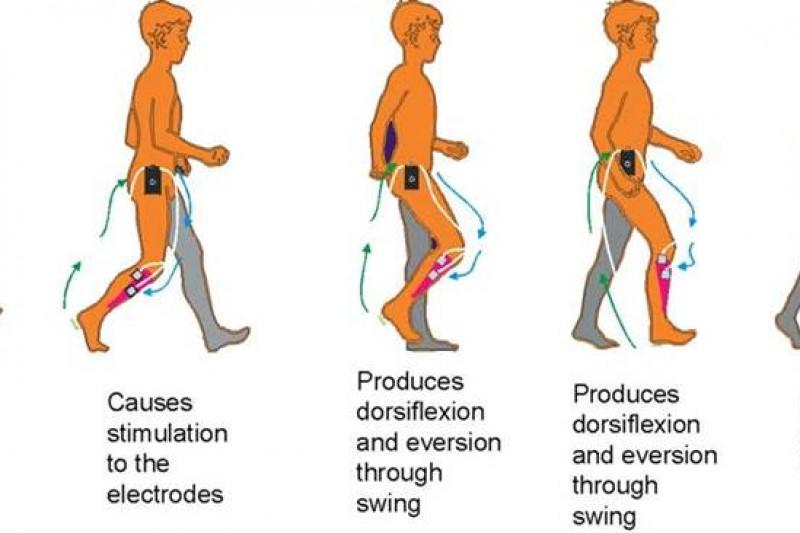 Function Electrical Stimulation (FES) in neurological rehabilitation