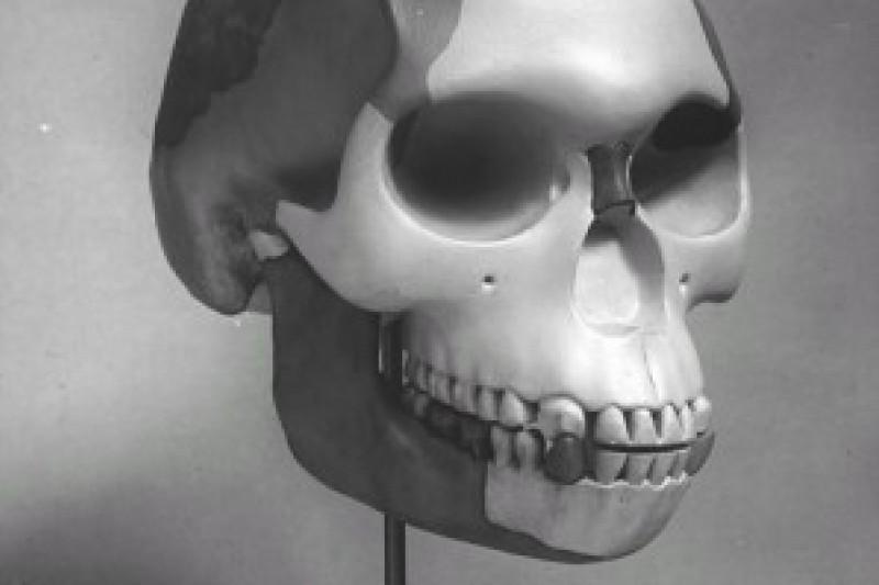 The 'reconstructed' skull of Piltdown Man