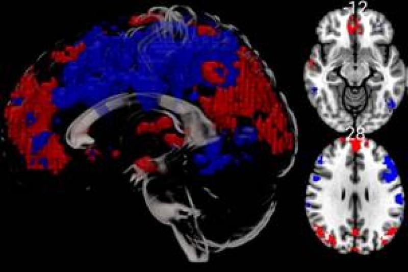 cold water MRI brain scans
