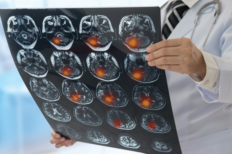 Reviewing brain scans