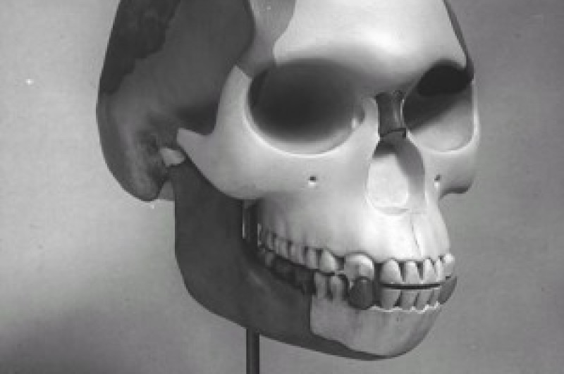 The 'reconstructed' skull of Piltdown Man